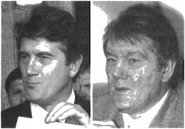 Yushchenko Before After